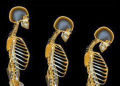 How osteoporosis affects your joints